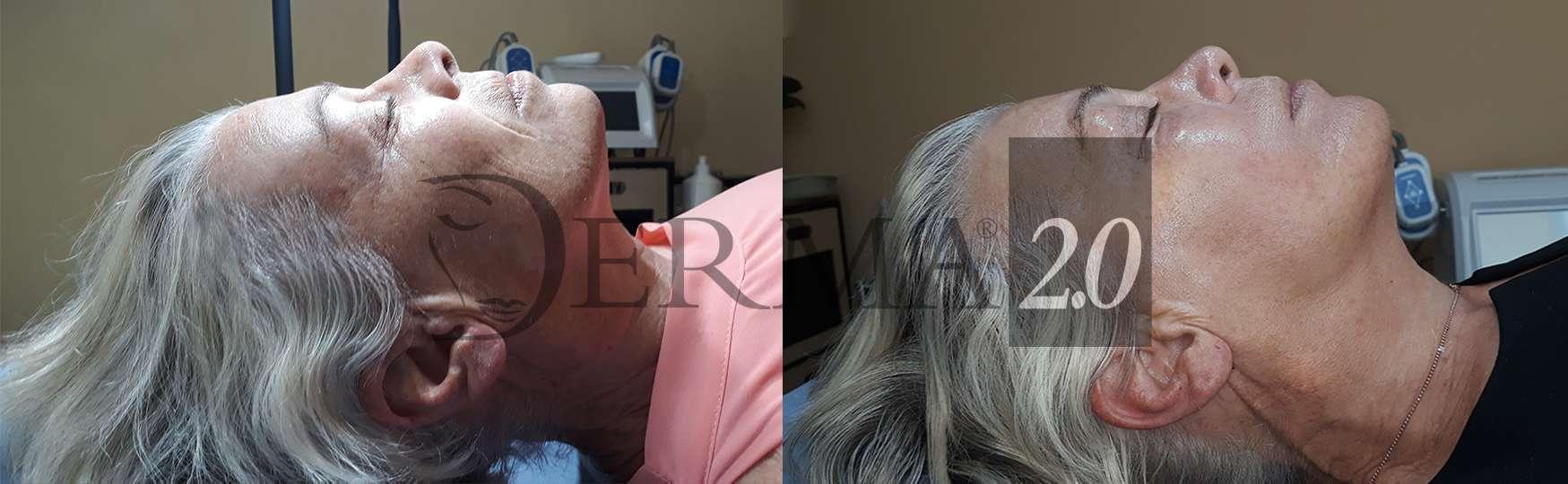 Biorivitalizzante viso per biorivitalizzazione viso con 3 tipi di acido ialuronico biorivitalizzazione con acido ialuronico e trattamento occhiaie